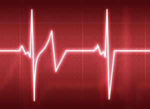 battement-irregulier-coeur